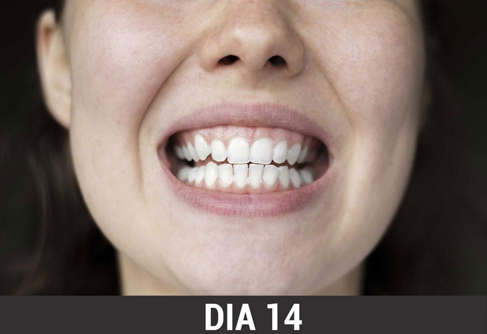 Exclusivo Famosa Artista Revela Segredo Dos Dentes Brancos